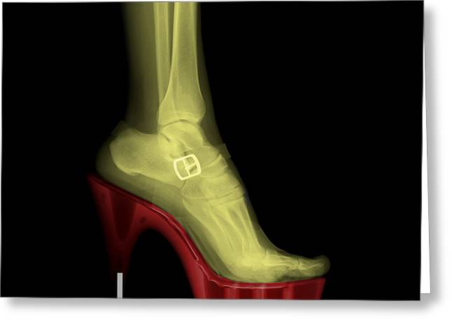 Human Body Parts Greeting Cards - Stiletto High-Heeled Shoe Greeting Card by Guy Viner