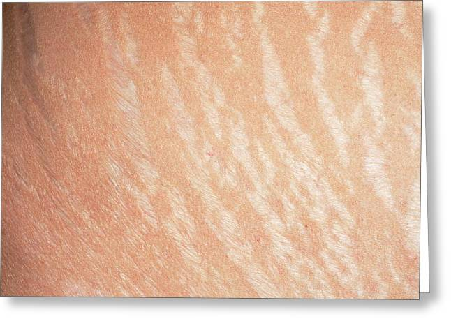 Stretch Marks Greeting Card by Dr P. Marazzi