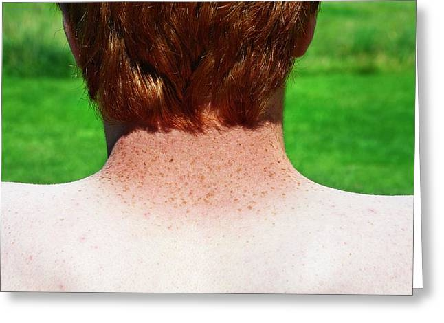 Sun-tanned Freckled Neck Greeting Card by Cordelia Molloy