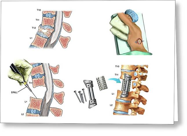Surgery To Fuse The Thoracic Spine Greeting Card by John T. Alesi