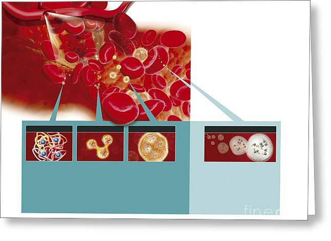 Hemoglobin Greeting Cards - Synthetic Red Blood Cells, Artwork Greeting Card by Claus Lunau / Bonnier Publications