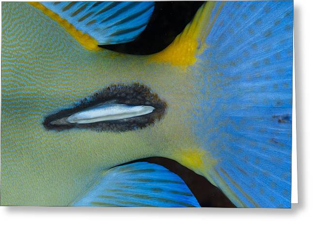 Surgeonfish Greeting Cards - Tail spike of surgeonfish Greeting Card by Science Photo Library
