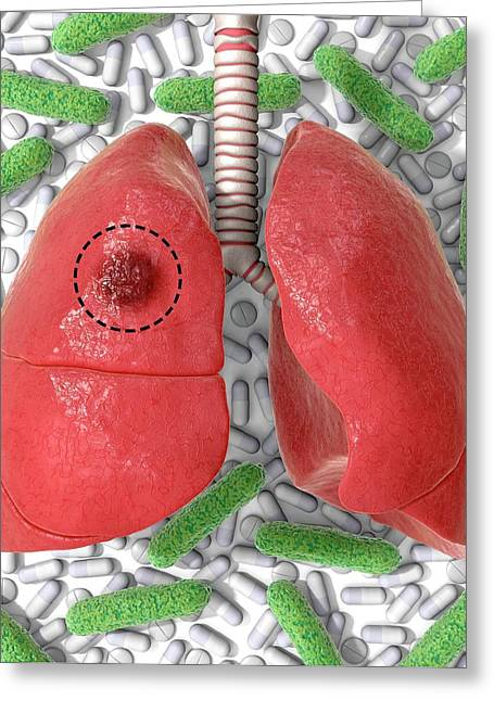 Tb Drug Resistance And Surgery Greeting Card by Animated Healthcare Ltd