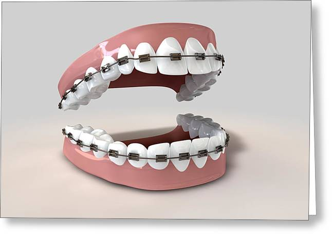 Dentistry Greeting Cards - Teeth Fitted With Braces Greeting Card by Allan Swart