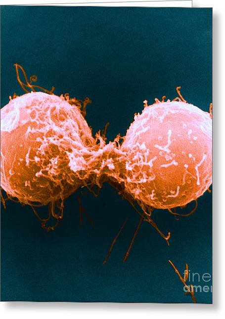 Microscopies Greeting Cards - Telophase, Sem Greeting Card by David M. Phillips