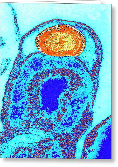 Tem Of The Bacteria Greeting Card by Alfred Pasieka