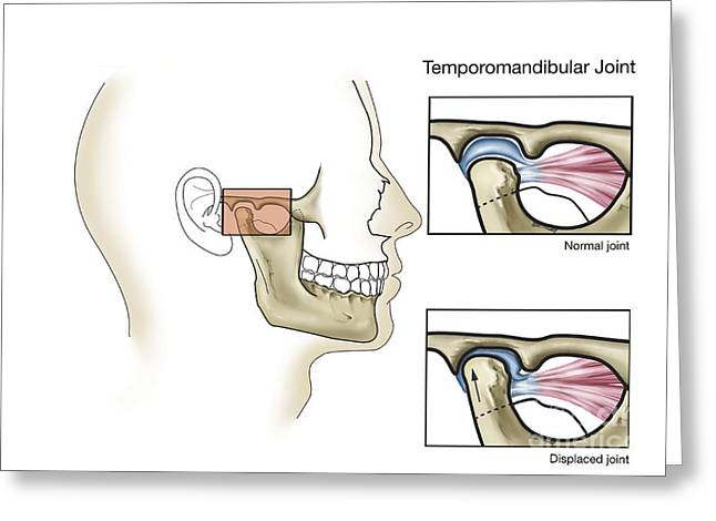 Human Joint Greeting Cards - Temporomandibular Joint, Normal Greeting Card by TriFocal Communications