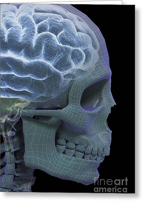 Temporal Bone Greeting Cards - The Skull And Brain Greeting Card by Science Picture Co