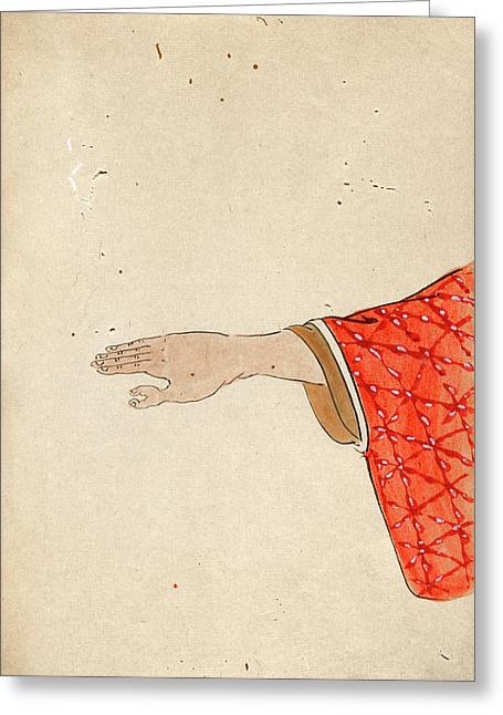 Thumb Polydactyly Greeting Card by National Library Of Medicine