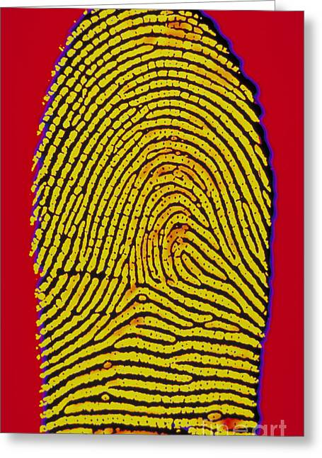 Fingertips Greeting Cards - Thumbprint Greeting Card by Scott Camazine