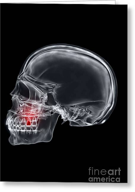 Frontal Bones Greeting Cards - Tooth Ache Greeting Card by Science Picture Co
