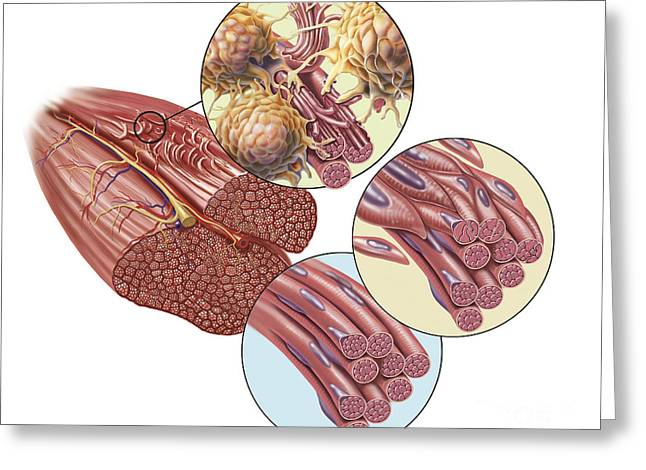 Actin Filament Greeting Cards - Torn Muscle Fibers With Healing Stages Greeting Card by TriFocal Communications