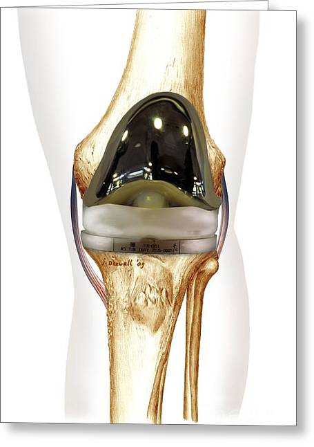 Total Knee Replacement, Artwork Greeting Card by D&L Graphics