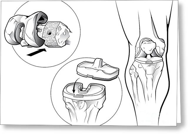 Total Knee Replacement Prosthetic Greeting Card by Evan Oto