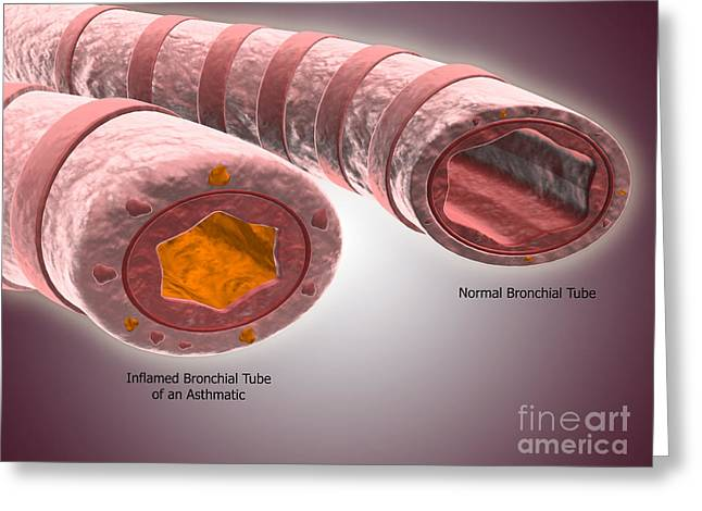 Comparison Greeting Cards - Trachea Cross-section Showing Normal Greeting Card by Stocktrek Images