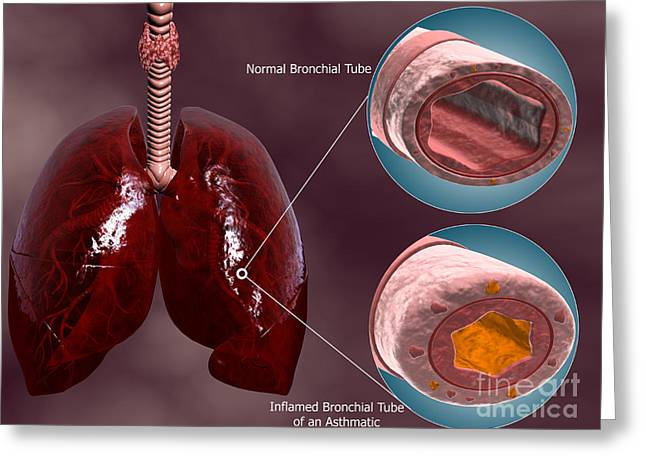 Comparison Greeting Cards - Trachea Cross-section With Lungs Greeting Card by Stocktrek Images
