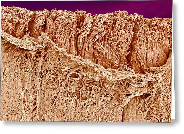 Scanning Electron Microscope Greeting Cards - Trachea muscle, SEM Greeting Card by Science Photo Library