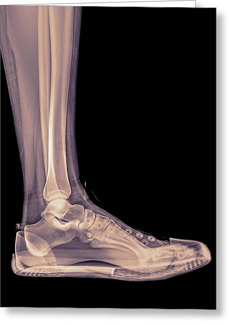 Trainers X-ray Greeting Card by Photostock-israel