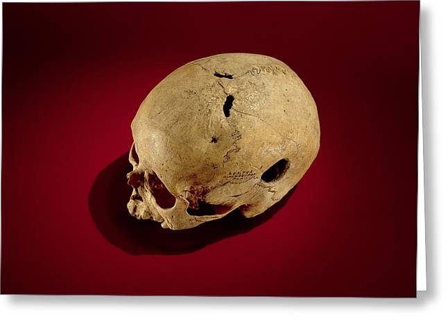 Medical Greeting Cards - Trepanned Skull Bone Greeting Card by .