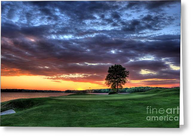 Golf Hole Greeting Cards - Try Me Greeting Card by Reid Callaway