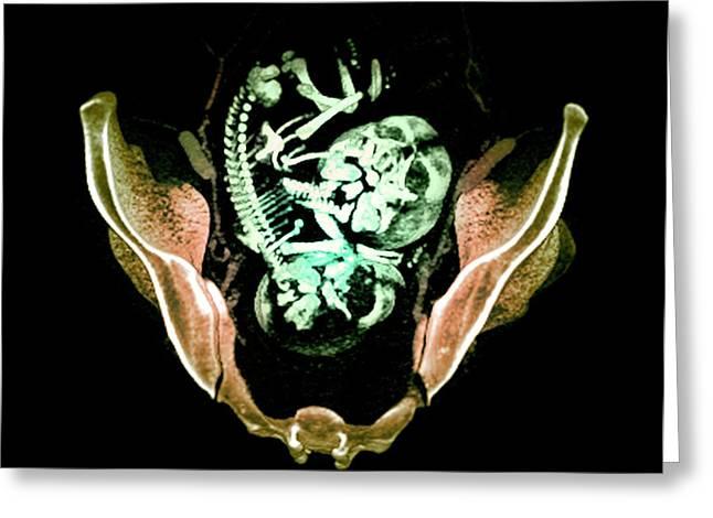 Twin Foetuses Greeting Card by Du Cane Medical Imaging Ltd