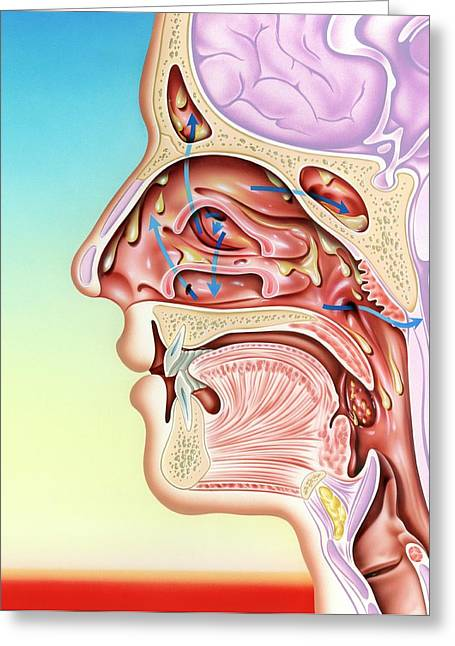 Upper Respiratory Tract Infection Greeting Card by John Bavosi