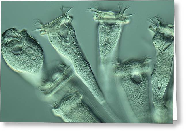 Uni-cellular Greeting Cards - Vorticella protozoa, light micrograph Greeting Card by Science Photo Library