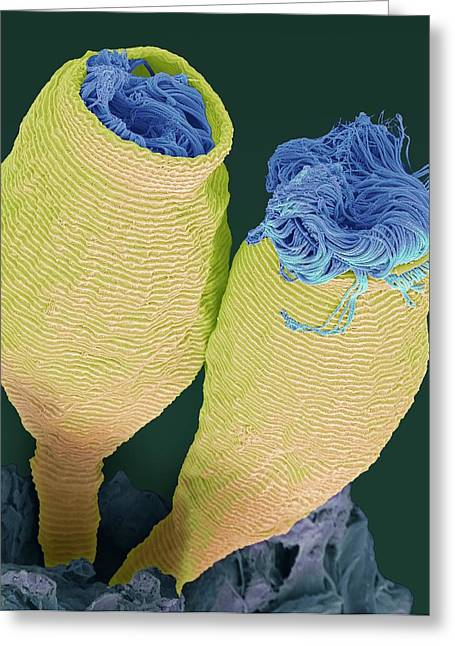 Vorticella Greeting Card by Steve Gschmeissner