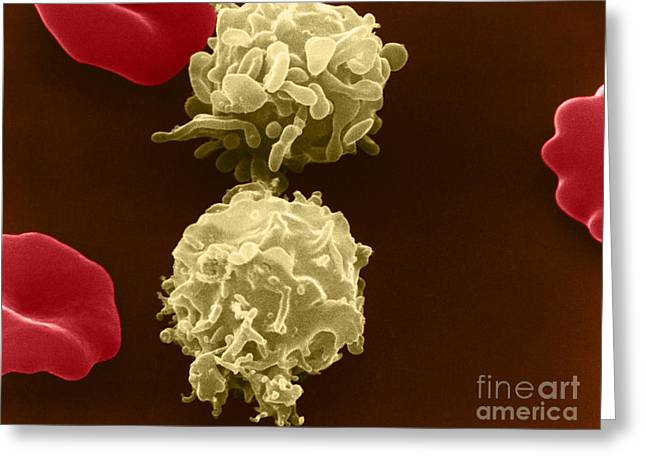 Microscopies Greeting Cards - White Blood Cells, Sem Greeting Card by David M. Phillips