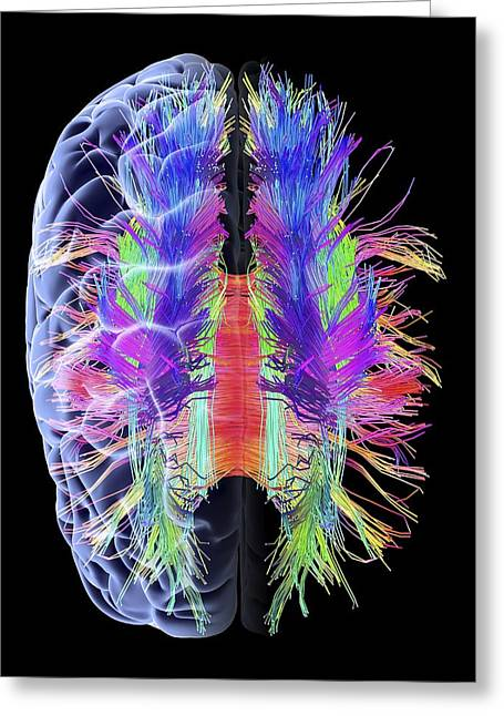 Diffusion Greeting Cards - White matter fibres and brain, artwork Greeting Card by Science Photo Library