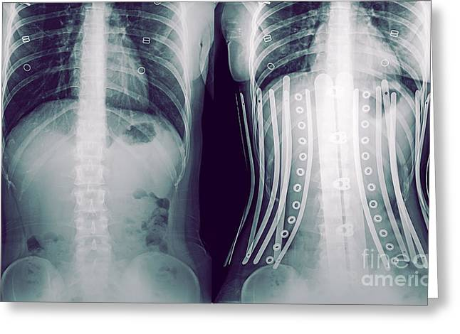 Disfigure Greeting Cards - Woman wearing a corset x-ray Greeting Card by Guy Viner