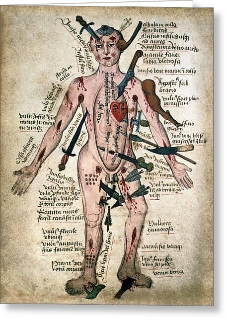 Wound Man Medieval Anatomy Illustration C. 15th Century Greeting Card by Daniel Hagerman