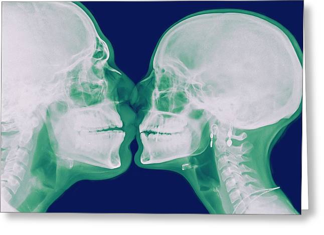 X-ray Kissing Greeting Card by Photostock-israel
