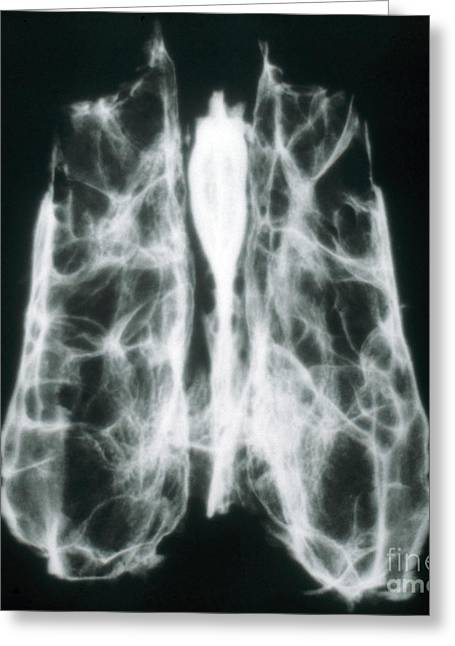 Ethmoid Bone Greeting Cards - X-ray Of Ethmoid Bone Greeting Card by VideoSurgery