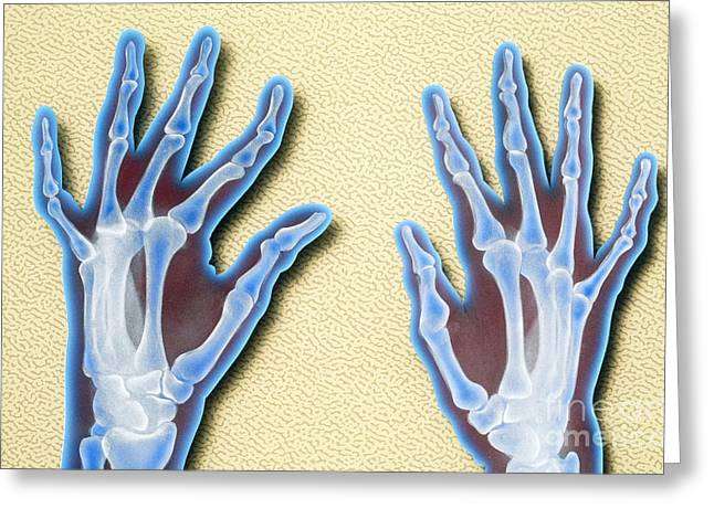 X-ray Of Hands Greeting Card by Chris Bjornberg