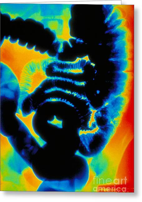 Gi Greeting Cards - X-ray Of Intestines Greeting Card by Susan Leavines