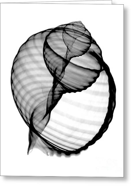 Tun Greeting Cards - X-ray Of Melissas Tun Greeting Card by Bert Myers