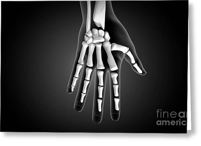 Human Limb Greeting Cards - X-ray View Of Human Hand Greeting Card by Stocktrek Images
