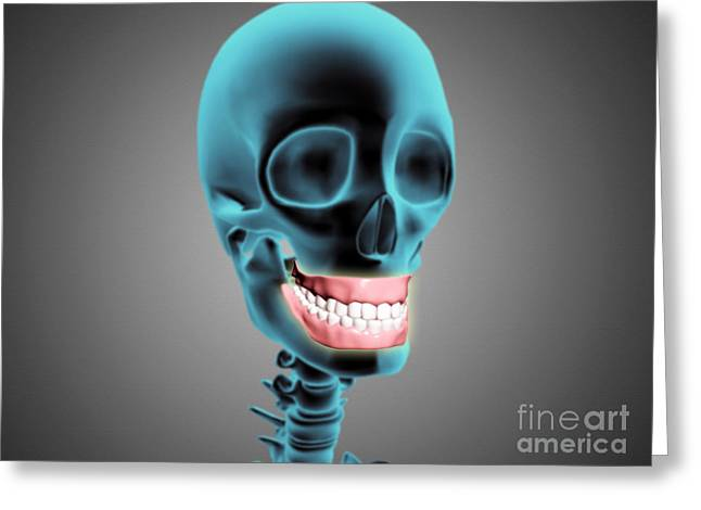 X-ray View Of Human Skeleton Showing Greeting Card by Stocktrek Images