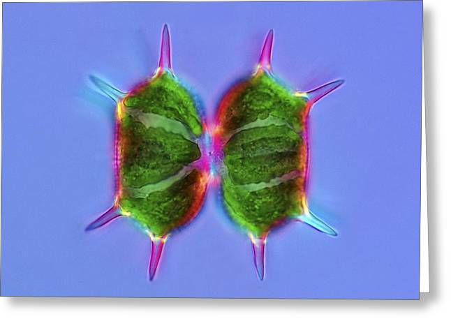 Desmids Greeting Cards - Xanthidium desmids, light micrograph Greeting Card by Science Photo Library