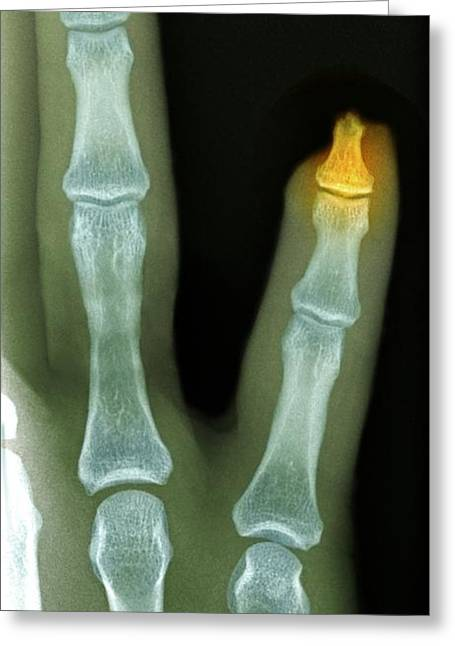 Fingertips Greeting Cards - Amputated Fingertip, X-ray Greeting Card by Du Cane Medical Imaging Ltd
