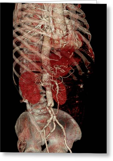 3-dimensional Greeting Cards - Aortic Aneurysm Ct Scan Greeting Card by Zephyr