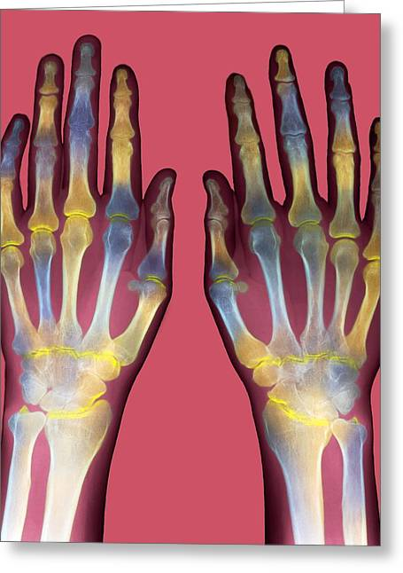 Arthritic Greeting Cards - Arthritic Hands, X-ray Greeting Card by Du Cane Medical Imaging Ltd