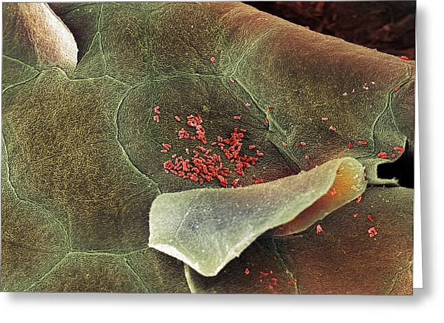 Squamous Greeting Cards - Bacteria In The Nose, Sem Greeting Card by Steve Gschmeissner