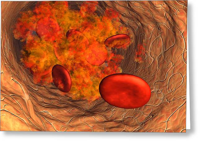 Physiology Greeting Cards - Blood Clot Greeting Card by Roger Harris
