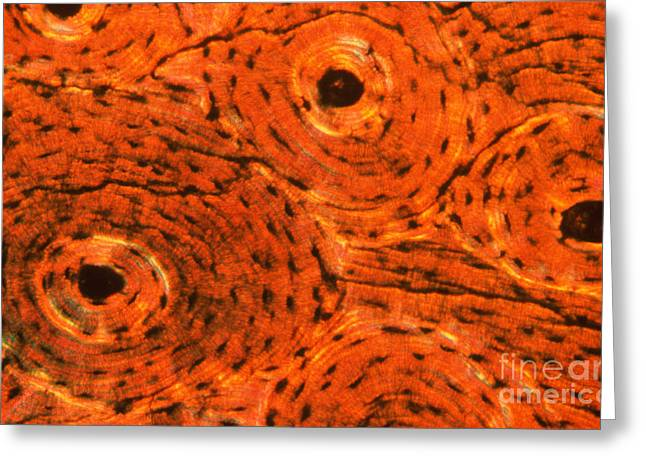 Micrography Greeting Cards - Bone Tissue Greeting Card by Eric V. Grave