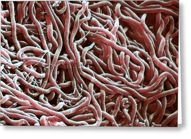 Borrelia Bacteria, Sem Greeting Card by Biomedical Imaging Unit, Southampton General Hospital