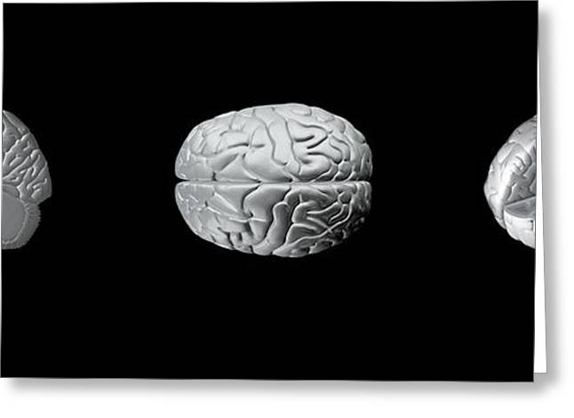 Biological Greeting Cards - Brain Anatomy, Artwork Greeting Card by Claus Lunau