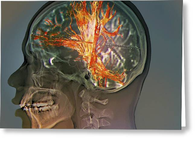 3-dimensional Greeting Cards - Brain Cancer, Mri Scan Greeting Card by Zephyr