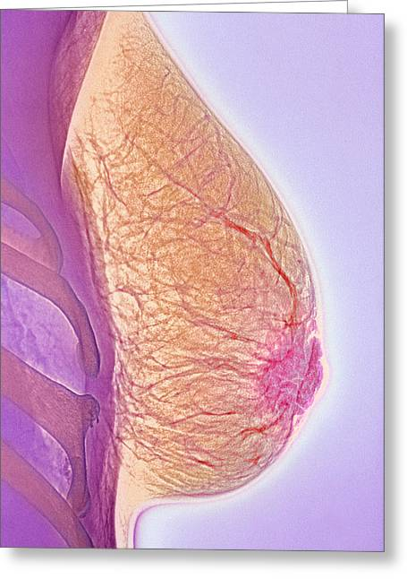 Conditions Greeting Cards - Breast Abscess, X-ray Greeting Card by Cnri